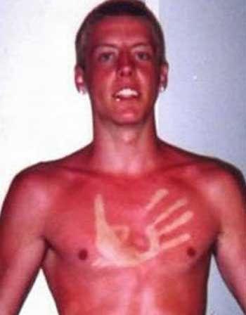 Essay sunburn